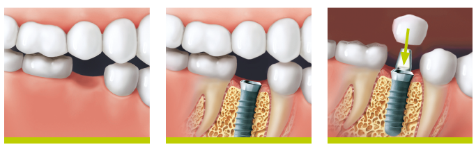 Etapele de tratament cu Implant dentar